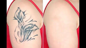 laser tattoo removal dr dinesh kumar dermatologist chennai