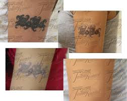laser tattoo removal before and after pictures