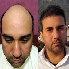 dhi hair transplant reviews best hair transplant in chandigarh recover hair transplant