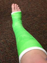 my broken ankle two weeks post op with cast