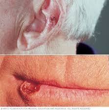 cancer of the ear cartilage squamous cell carcinoma of the skin symptoms and causes mayo