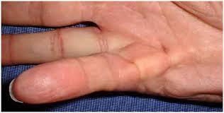 knoten handinnenfläche operative verfahren