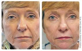 intense pulsed light therapy will a skin treatment with ipl or laser help you look better fast
