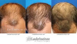 transplant hair second round draft get hair restoration in dunedin clearwater fllaufer institute