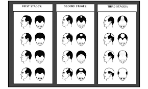 different types of receding hairlines know the different types of hair loss fitness studion change