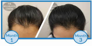 reviews from hair burst why am i losing more hair after just starting hair loss treatment