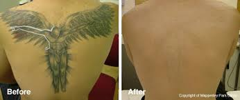 tattoo removal london tattoo removal angel tattoo love
