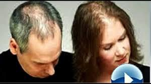 hair loss how to stop hair loss and regrow hair naturally youtube
