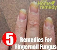 best 25 fingernail fungus ideas on pinterest foot fungus