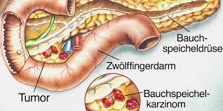 bauchspeicheldrüsenschwäche symptome zu viel alkohol macht die bauchspeicheldrüse krank