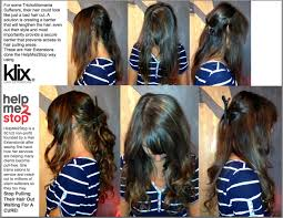 hair styles for trichotellamania helpme2stop trichotillomania using klix hair extensions stop