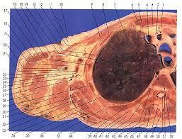 Neck Cross Sectional Anatomy Anatomy Atlases Atlas Of Human Anatomy In Cross Section Section