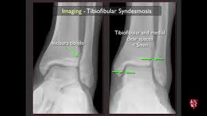 Ankle Ligament Tear Mri Imaging Of The Tibiofibular Syndesmosis And High Ankle Sprain