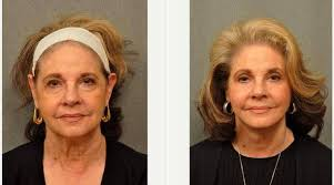 70 yr old woman with long hair 70 year old woman treated with facelift with dr gilbert lee md
