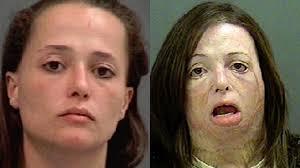 top 10 shocking before and after drug use photos bang bang pop
