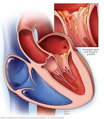 endocarditis symptoms and causes mayo clinic