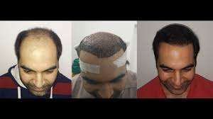 how thick is 1000 hair graft hair transplant 6000 grafts fue method dr dutt hair transplant