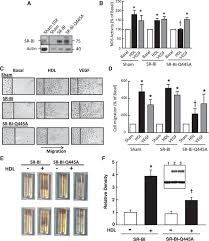 scavenger receptor class b type i is a plasma membrane cholesterol