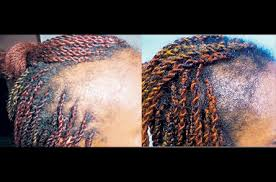 hair transplant for black women black women pay the price to get beautiful hairstyles caribfocus