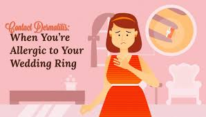 wedding ring dermatitis contact dermatitis when you re allergic to your wedding ring