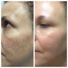 skin nevaeh spa skin care 930 e warner rd chandler az