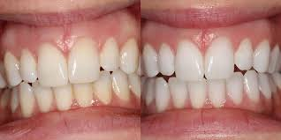 Does Laser Teeth Whitening Work Can U0027t Stop Smiling Whitening Review Carlyrowena