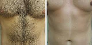 laser hair removal for men in leeds and bradford good skin days