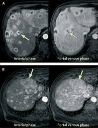abdominal mri advances in the detection of liver tumours and