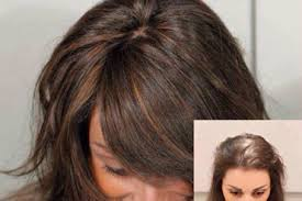 wigs for thinning hair that are not hot to wear wigs for alopecia and cancer patients continental hair