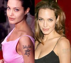 female celebrities who had laser tattoo removal toronto spamedica