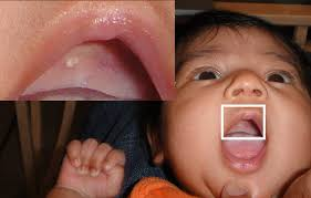 Pictures Of Oral Cancer On Roof Of Mouth by Gingival Cyst Wikipedia