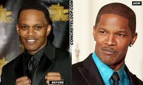 african american hair transplant jamie foxx designing an african shaped hairline lam sam