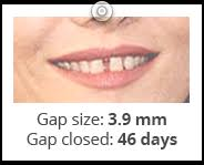 goody bands for teeth frequently asked questions faq orthofill