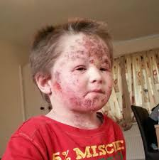 Red Flaky Skin Around Nose And Eyebrows Toddler Addicted To Eczema Cream Suffers Agonising Red Raw Skin