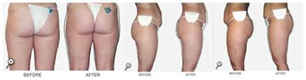 red light therapy cellulite light therapy