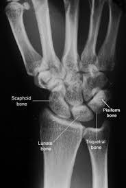 Radiology Anatomy Wrist X Ray Radiographic Anatomy Radiology Anatomy Images