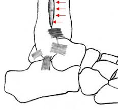 Anterior Distal Tibiofibular Ligament Ankle Sprains Dr Chris Chiodo