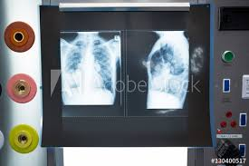 x ray light box for sale close up of x ray on lightbox buy this stock photo and explore