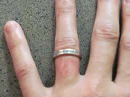 wedding ring dermatitis the 5 year itch mymanmax s