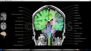 Mri Sectional Anatomy Brain Atlas Of Human Anatomy With Mri