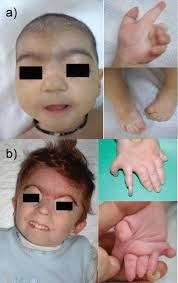 depressed nasal bridge in pediatric orthopaedic practice a review