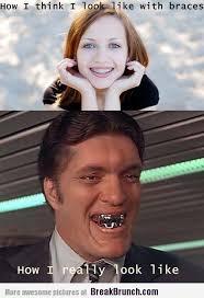 Braces Off Meme - 16 best braces images on pinterest braces humor braces problems