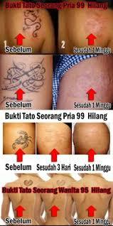 tattoo jogja murah tattonox obat penghilang tatto permanen alami aman murah obat