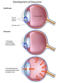 Causes Of Sudden Blindness In Dogs What Happens When Your Dog Gets Glaucoma U2013 Faqs Blind Dog