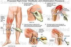 Interactive Knee Anatomy Proposed Right Knee Tibiofibular Joint Stabilization Procedure