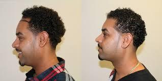hairline restoration for black men lower hairline and full density hair transplant dr brett bolton