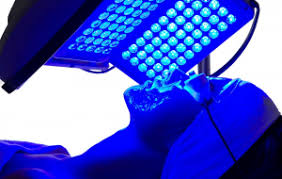 blue light for acne side effects blu u for acne alta dermatology