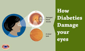 Diabetic Blindness Diabetes Blindness Sharing Information About The Effects Of
