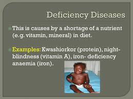 Is Night Blindness Hereditary Pathogenic Deficiency Hereditary And Physiological Diseases