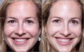 collagen red light therapy omnilux red light collagen therapy in darien ct